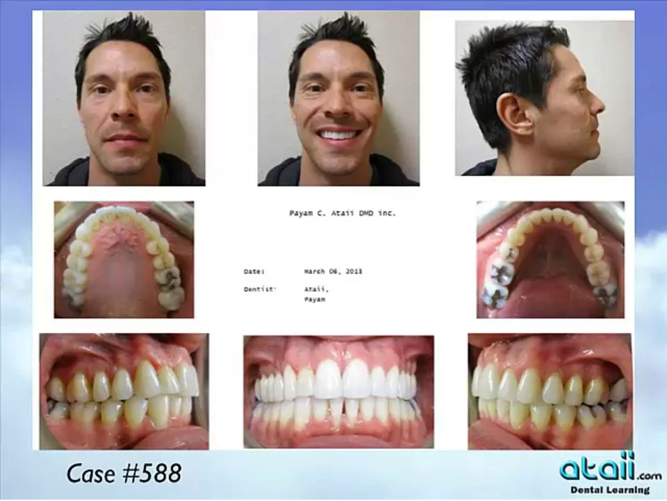 Dr.-Ataii-Invisalign-Case-Gallery