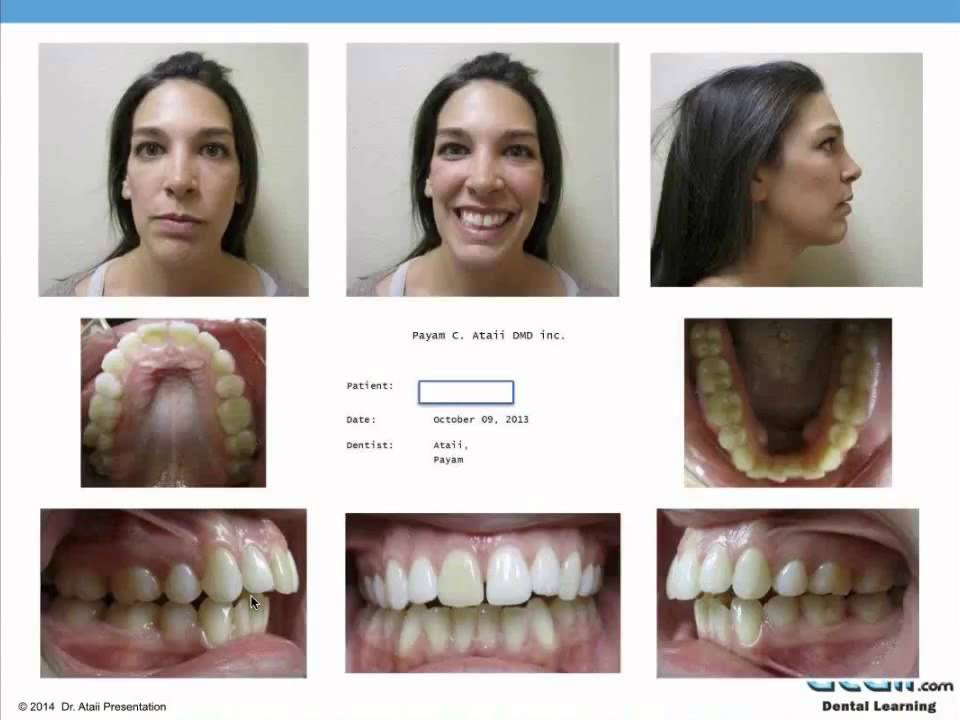 Dr.-Ataiis-Advanced-Orthodontics